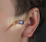 隐形IIC智隐助听器